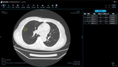 人工智能摄影技术在肺部医学影像_文章发表